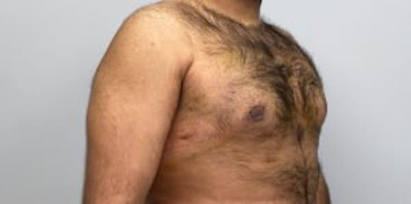 Liposuction Gallery - Patient 33514451 - Image 2