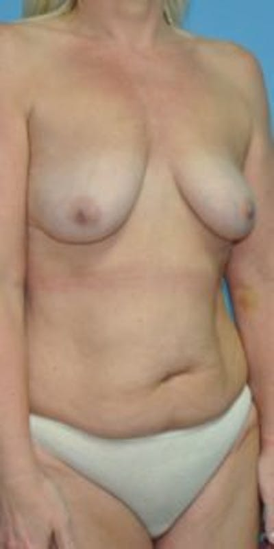Mommy makeover Gallery - Patient 33514460 - Image 1