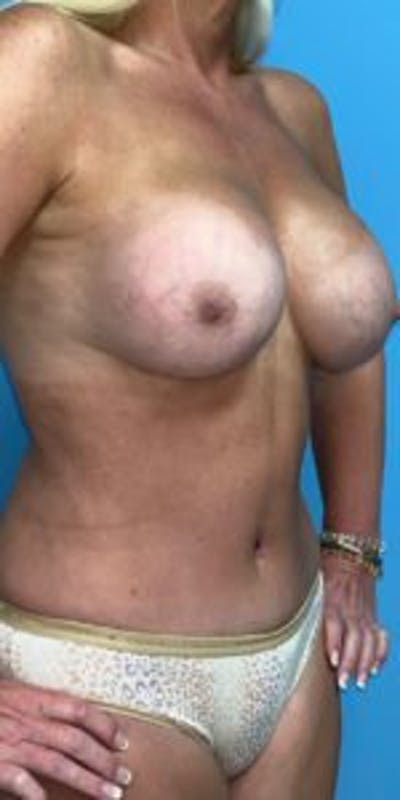 Mommy makeover Gallery - Patient 33514460 - Image 2