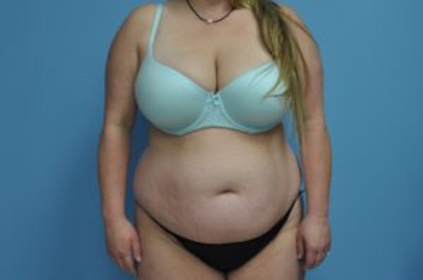 Tummy Tuck Gallery - Patient 33514492 - Image 1
