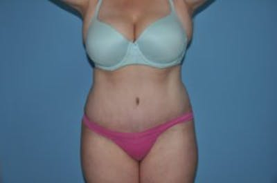 Tummy Tuck Gallery - Patient 33514492 - Image 2
