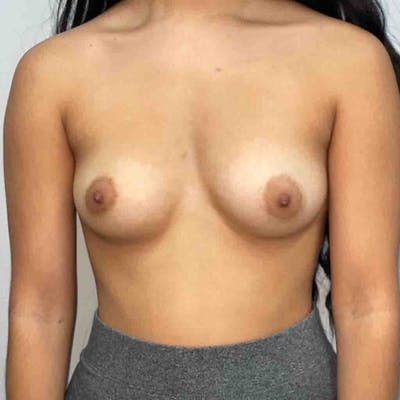 Breast Augmentation Gallery - Patient 33513195 - Image 1