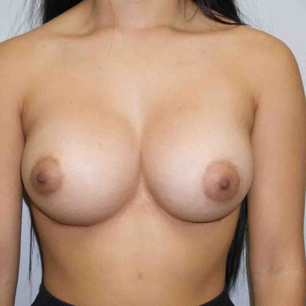 Breast Augmentation Gallery - Patient 33513195 - Image 2