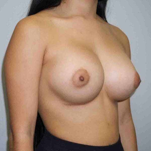 Breast Augmentation Gallery - Patient 33513195 - Image 4