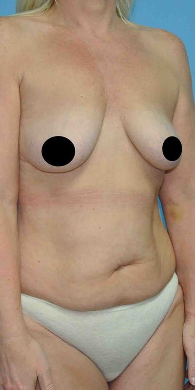 Breast Augmentation Gallery - Patient 33513196 - Image 1