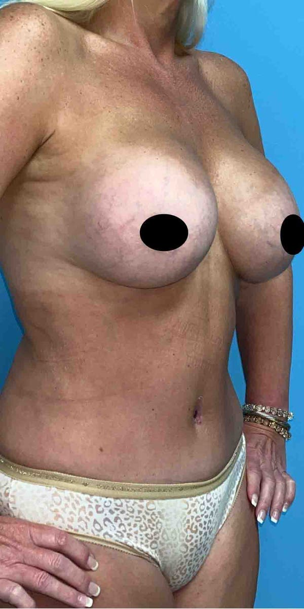 Breast Augmentation Gallery - Patient 33513196 - Image 2