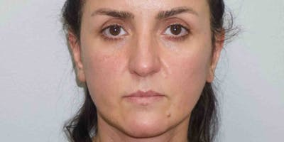 Facelift with fat grafting Gallery - Patient 33513177 - Image 2