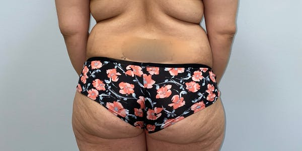 Butt Lift Gallery - Patient 33514429 - Image 1