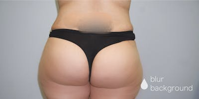 Butt Lift Gallery - Patient 33514429 - Image 2