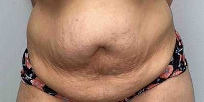 Liposuction Gallery - Patient 33514453 - Image 1