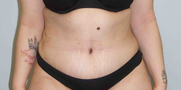 Tummy Tuck Gallery - Patient 33514493 - Image 6