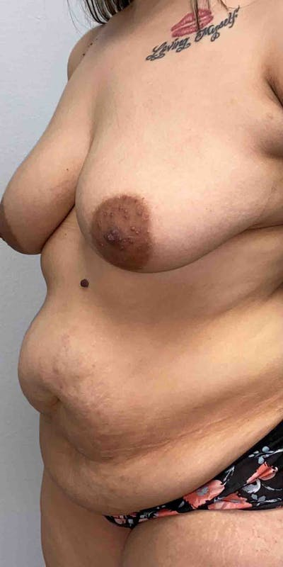 Tummy Tuck Gallery - Patient 33514493 - Image 1