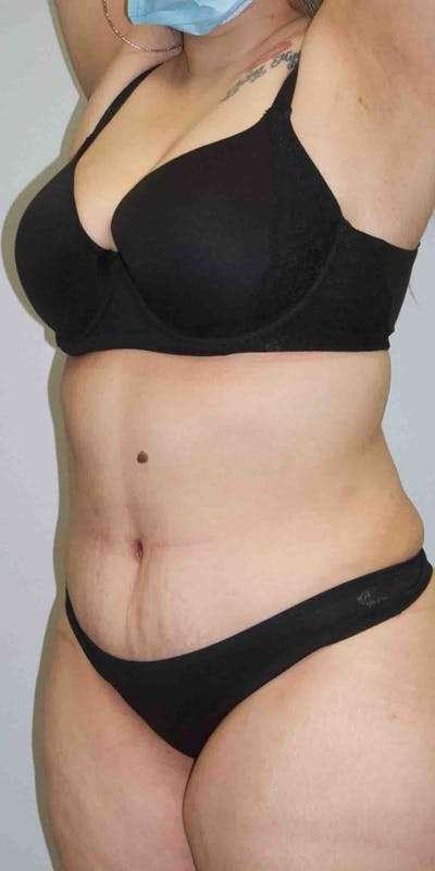 Tummy Tuck Gallery - Patient 33514493 - Image 2