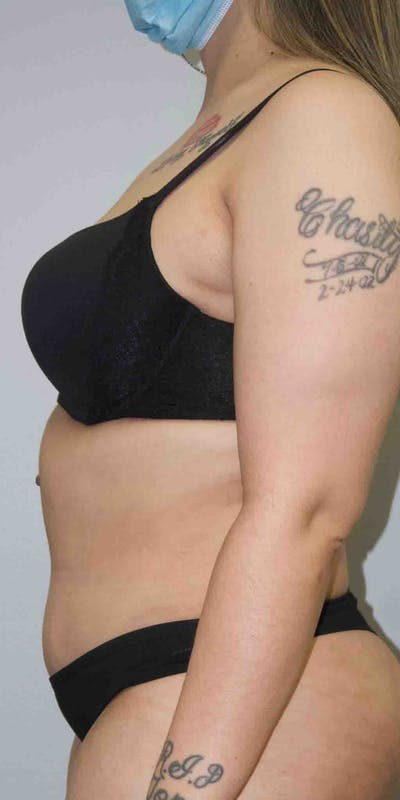 Tummy Tuck Gallery - Patient 33514493 - Image 4