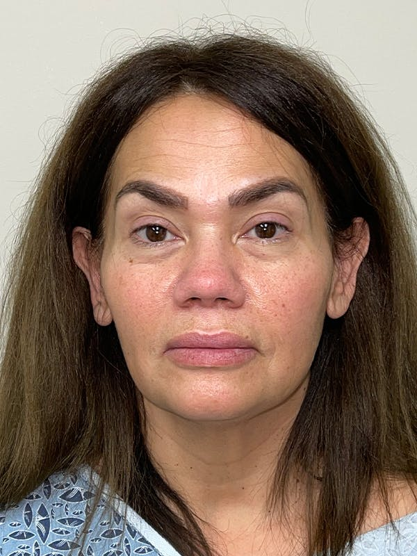 Facelift with fat grafting Gallery - Patient 44804375 - Image 1