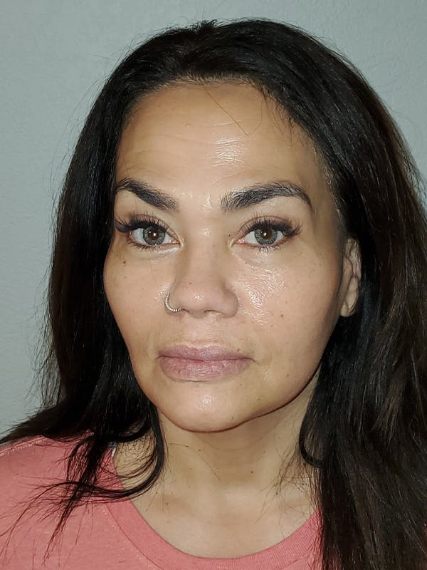 Facelift with fat grafting Gallery - Patient 44804375 - Image 2