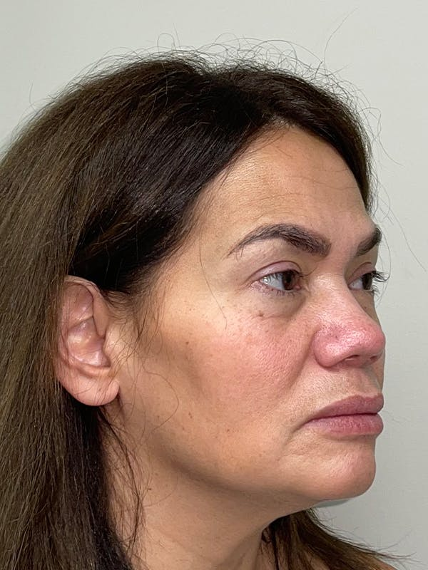 Facelift with fat grafting Gallery - Patient 44804375 - Image 3
