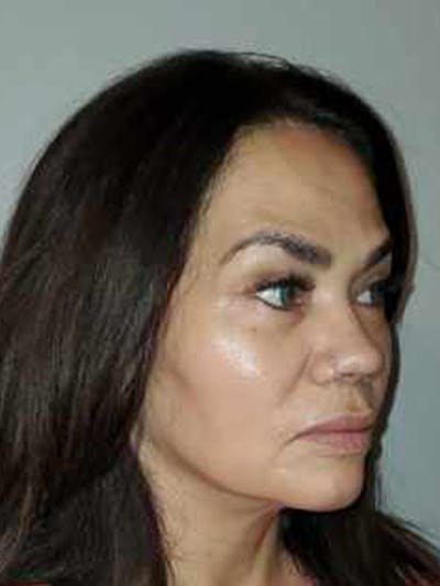 Facelift with fat grafting Gallery - Patient 44804375 - Image 4