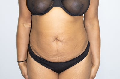 Tummy Tuck Gallery - Patient 46629382 - Image 1