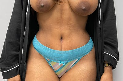 Tummy Tuck Gallery - Patient 46629382 - Image 2