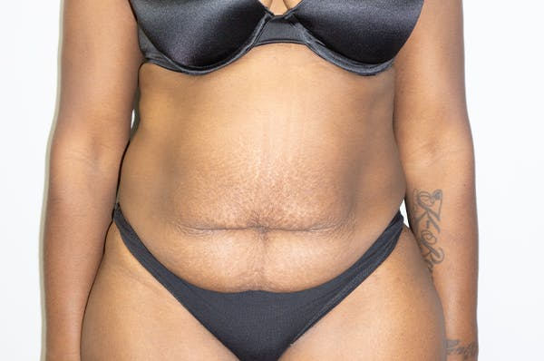 Tummy Tuck Gallery - Patient 46629383 - Image 1