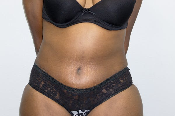 Tummy Tuck Gallery - Patient 46629383 - Image 2