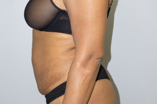 Tummy Tuck Gallery - Patient 46629382 - Image 3