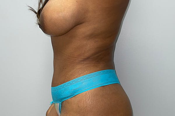 Tummy Tuck Gallery - Patient 46629382 - Image 4