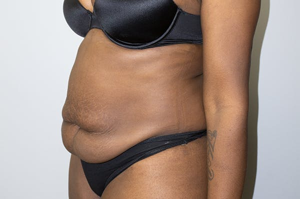 Tummy Tuck Gallery - Patient 46629383 - Image 3