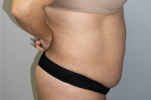 Tummy Tuck Gallery - Patient 47434578 - Image 3