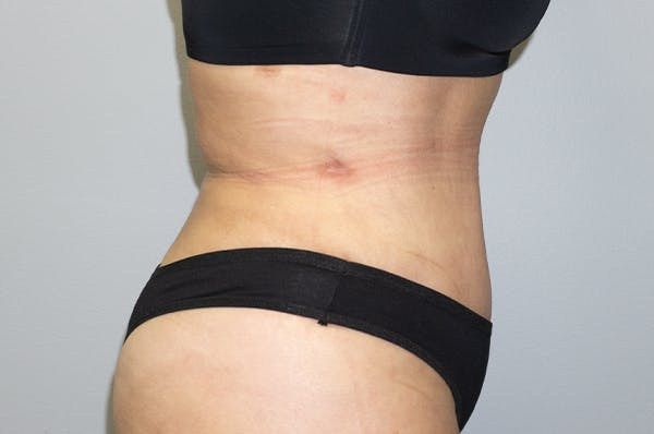 Tummy Tuck Gallery - Patient 47434578 - Image 4