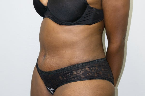 Liposuction Gallery - Patient 46629457 - Image 4