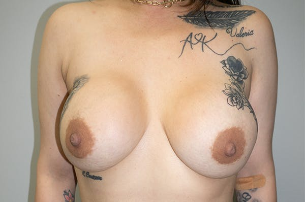 Breast Revision Gallery - Patient 46629532 - Image 1