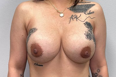 Breast Revision Gallery - Patient 46629532 - Image 2