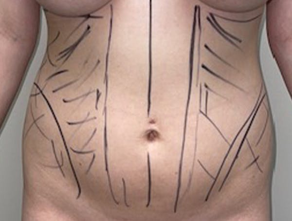 Liposuction Gallery - Patient 46629987 - Image 1