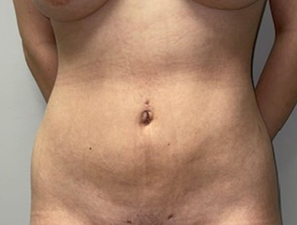 Liposuction Gallery - Patient 46629987 - Image 2