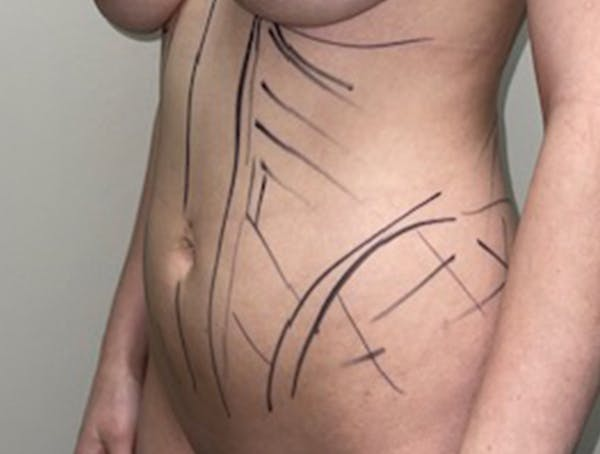 Liposuction Gallery - Patient 46629987 - Image 3