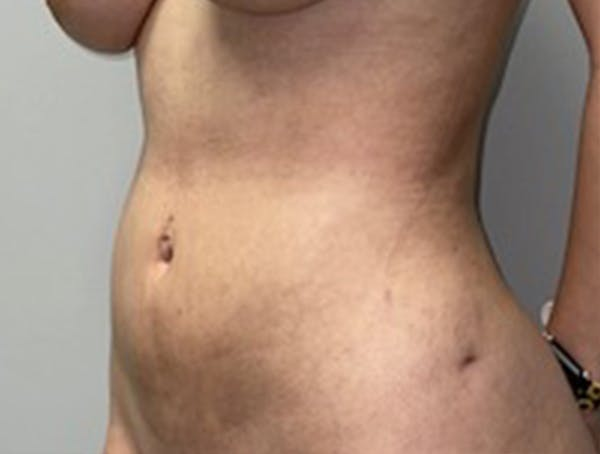 Liposuction Gallery - Patient 46629987 - Image 4