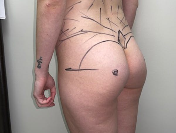 Liposuction Gallery - Patient 46629987 - Image 5