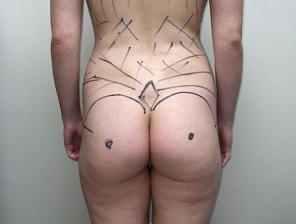 Butt Lift Gallery - Patient 46630304 - Image 1