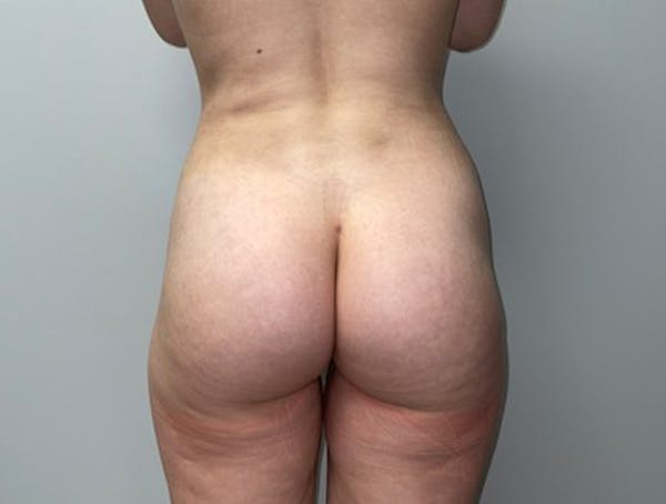 Butt Lift Gallery - Patient 46630304 - Image 2