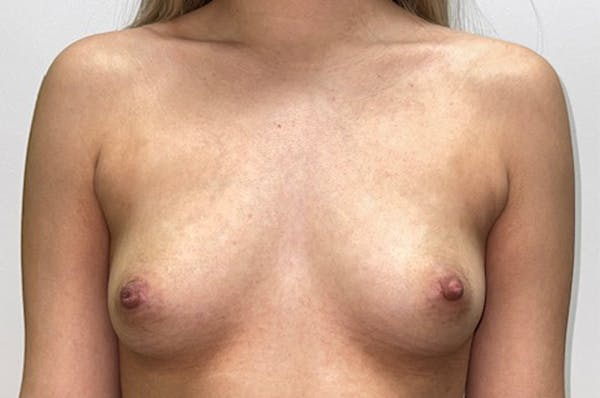 Breast Augmentation Gallery - Patient 46630381 - Image 1