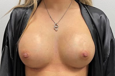 Breast Augmentation Gallery - Patient 46630381 - Image 2
