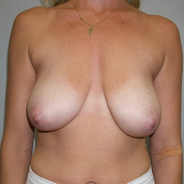 Breast Lift Gallery - Patient 46969131 - Image 1
