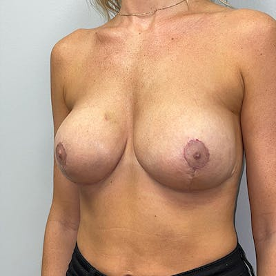 Breast Lift Gallery - Patient 46969131 - Image 4