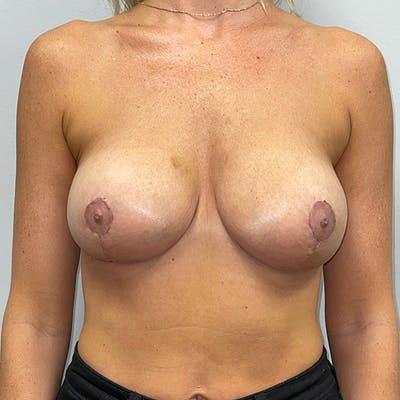 Breast Lift Gallery - Patient 46969131 - Image 2