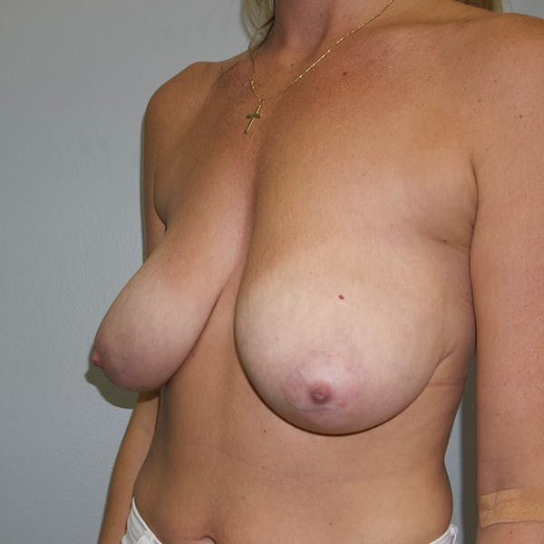 Breast Lift Gallery - Patient 46969131 - Image 3