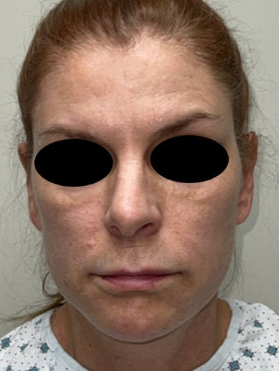 Facial Fat Transfer Gallery - Patient 46629753 - Image 1