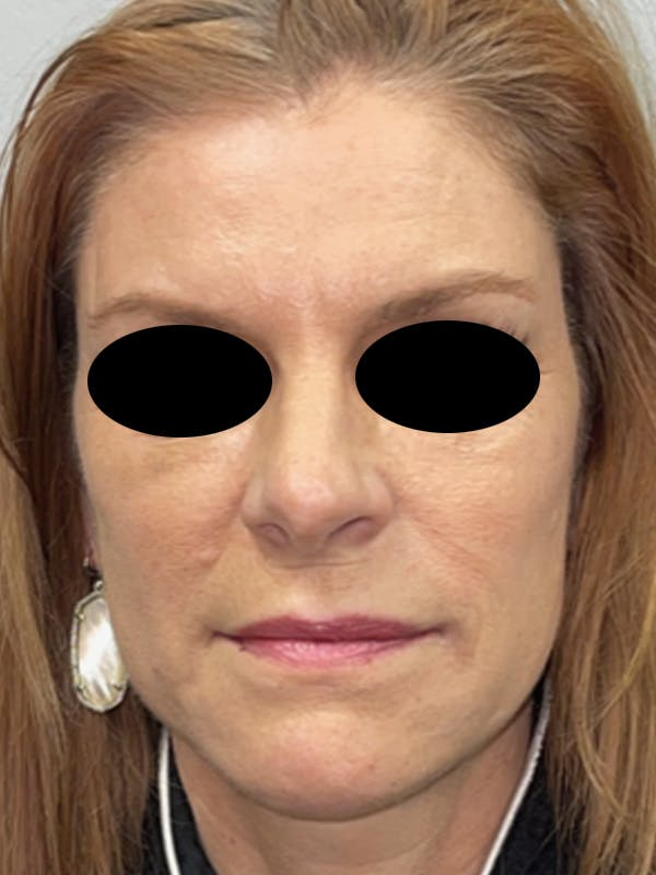 Facial Fat Transfer Gallery - Patient 46629753 - Image 2