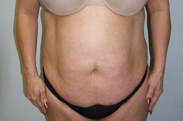 Tummy Tuck Gallery - Patient 47434578 - Image 1